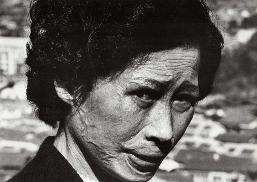 Shomei Tomatsu: Hibakusha Tsuyo Kataoka, Nagasaki, 1961